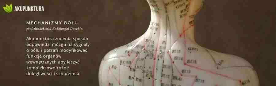 Mechanizmy przeciwbólowe w akupunkturze