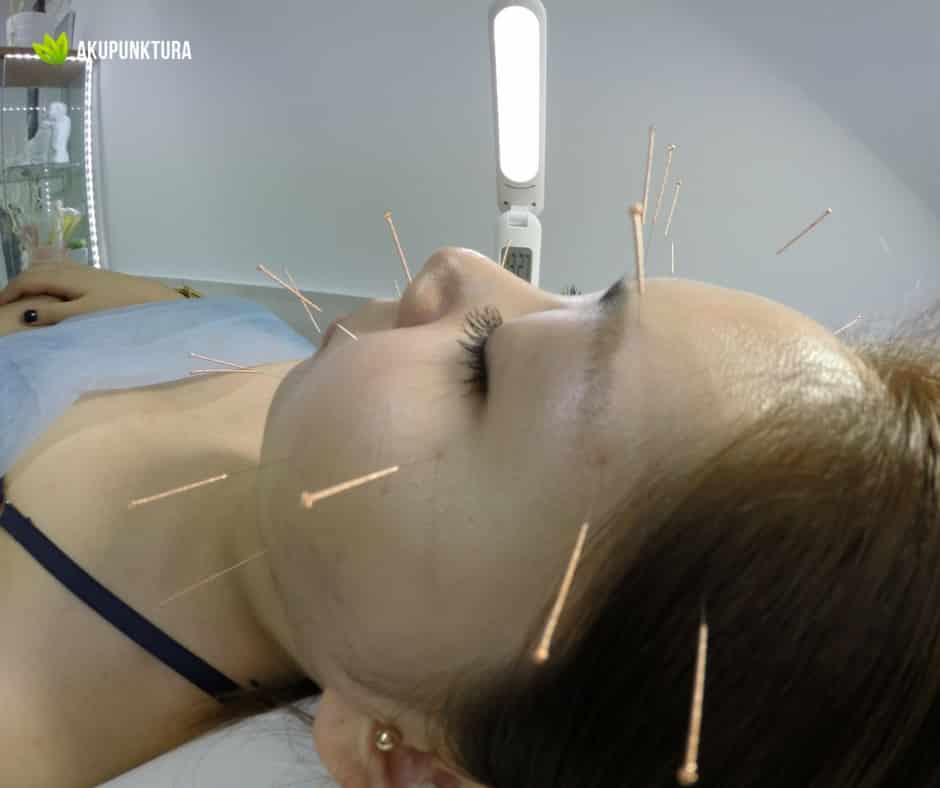 permanentna migrena a akupunktura