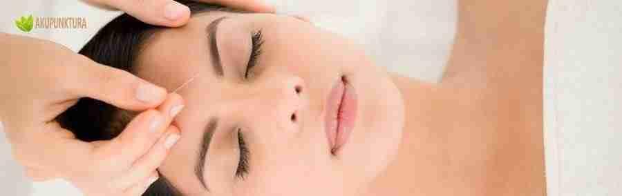 akupunktura kosmetyczna