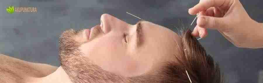 akupunktura kosmetyczna dla panów