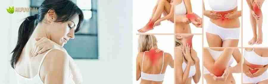akupunktura przeciwbólowa