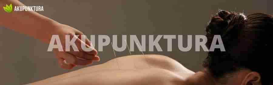 diagnostyka akupunktura