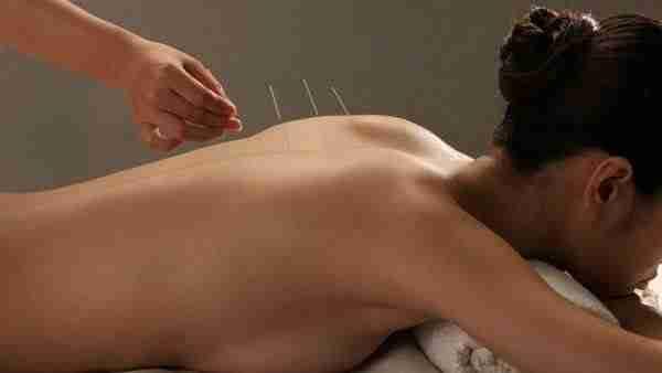 jakich efektów się spodziewać po akupunkturze?