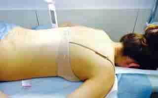 faq akupunktura kobieta
