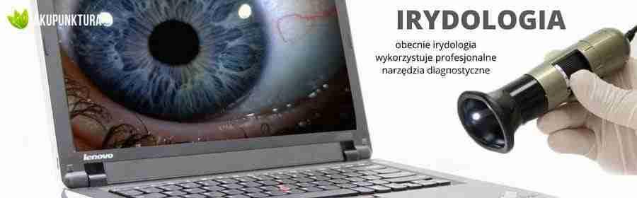 irydologia komputerowa
