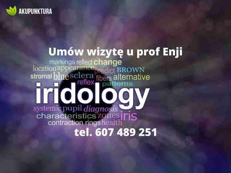 irydologia obrazek