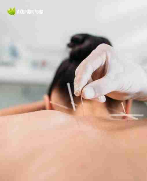 generalizacja w zabiegu akupunktury