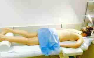 o nas akupunktura kobieta