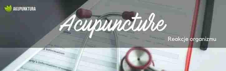 reakcje organizmu na akupunkturę