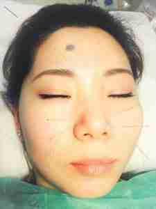 akupunktura na zatoki