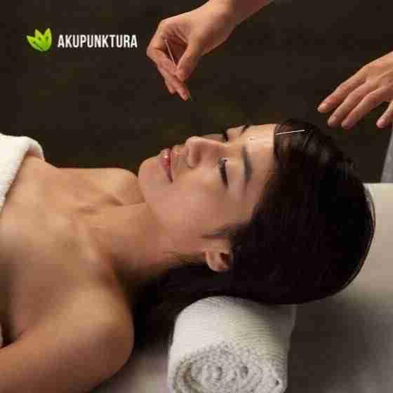 faq akupunktura kobiet
