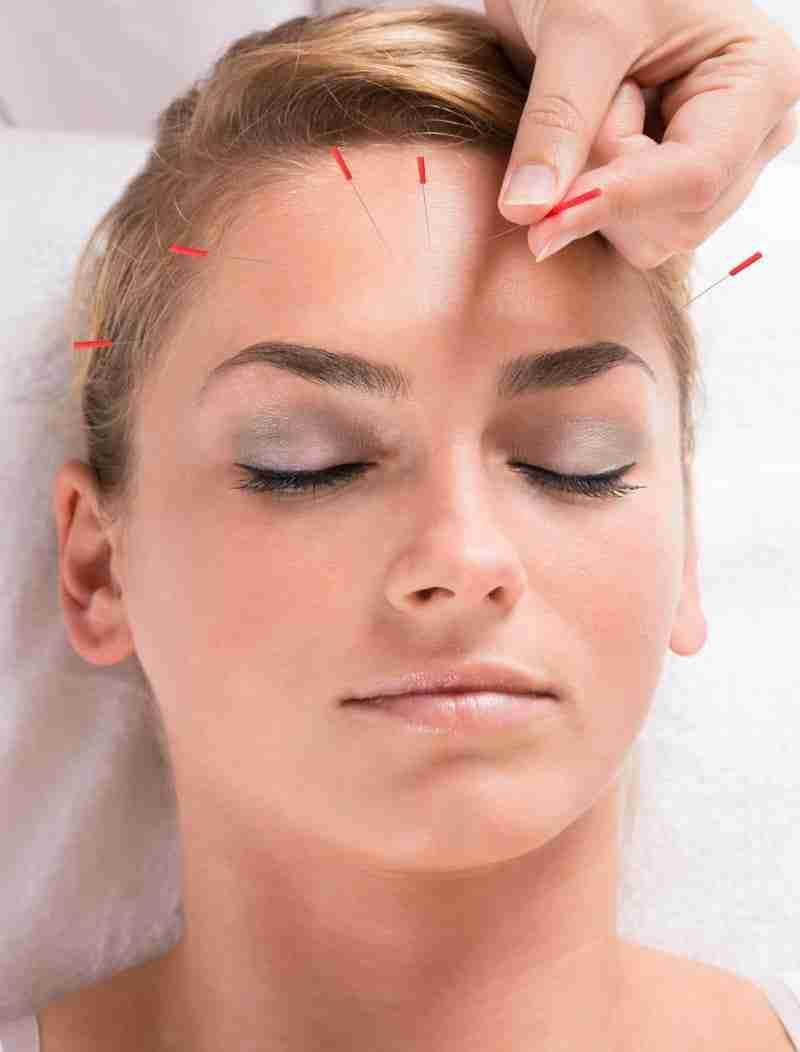 akupunktura kosmetyczna zabiegi medycyny wschodniej dla ciala