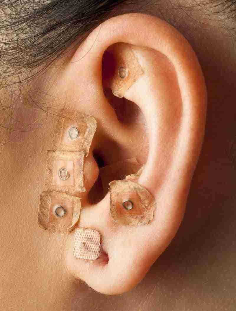 aurikuloterapia akupunktura ucha